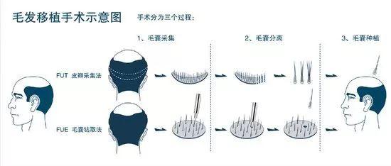 福州雍禾植发毛囊是用自己的还是别人的?