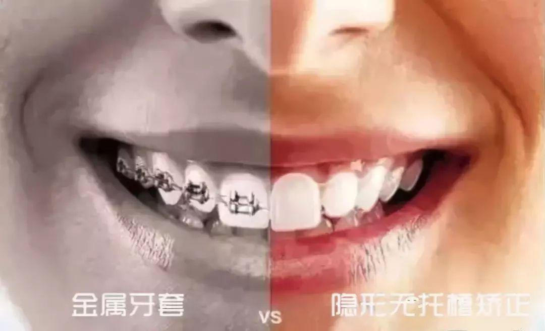 牙齿矫正丨你想知道的全在这里!